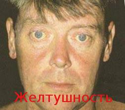 Cliniche di Khabarovsk a codificazione da alcool